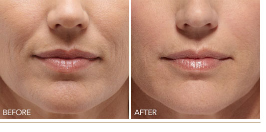 Mg Medical Amp Aesthetics Facility Wrinkle Fillers